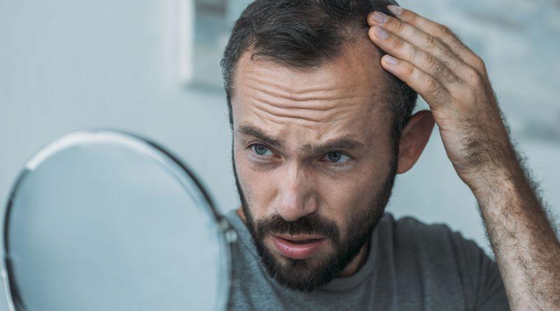 Mikropigmentacja skóry głowy - dlaczego warto?